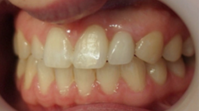 Dental Implant – In Progress & After
