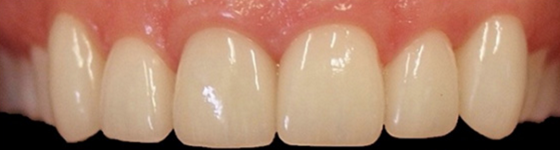 Veneers (Porcelain) – Before & After